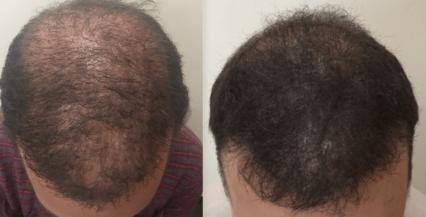 Adding scalp micropigmentation plus FUE creates a thicker look.