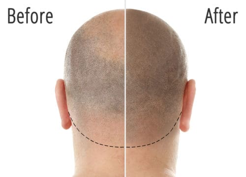 Scalp Micropigmentation Treatment Before and After