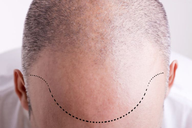 Find the best scalp micropigmentation clinic starts with diligent research. Your SMP artist will recreate your natural hairline.