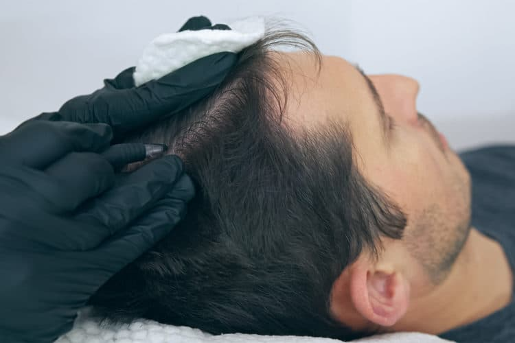 scalp micropigmentation costs