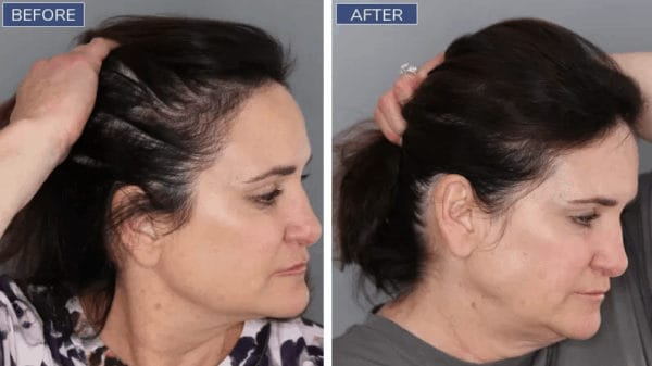 Hairline tattoos for women are a good SMP option.