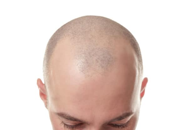 scalp micropigmentation pros and cons