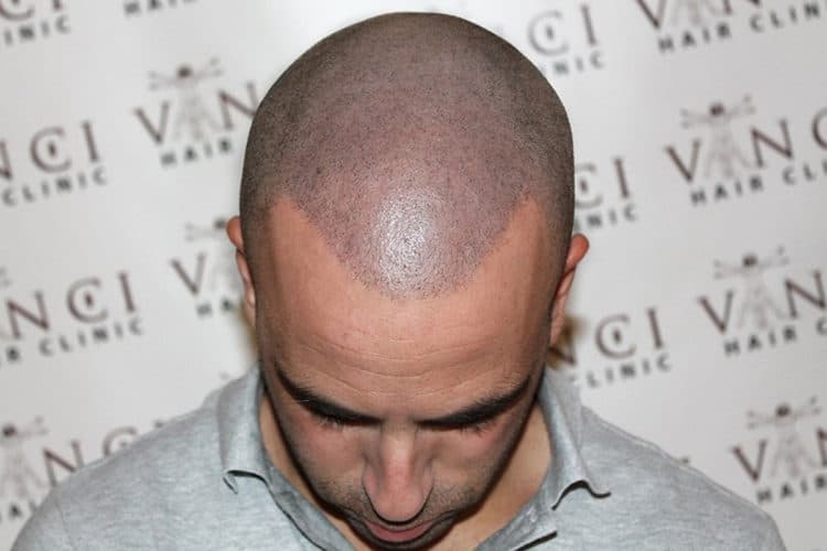 scalp micropigmentation side effects