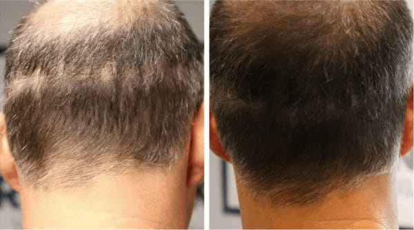 Scalp micropigmentation to hide FUT scar