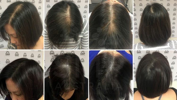 Scalp micropigmentation for women has amazing results.