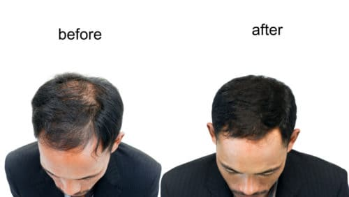 Before after SMP and FUE procedure