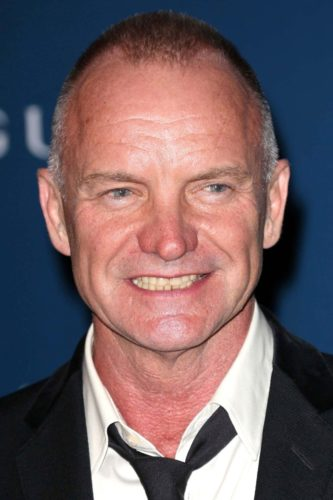 Sting's with a deep recede in his hairline with a buzz cut.