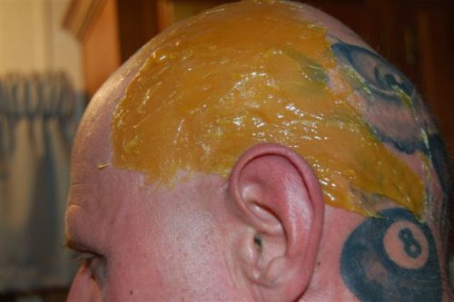 Sugaring paste treatment for a bald head look.