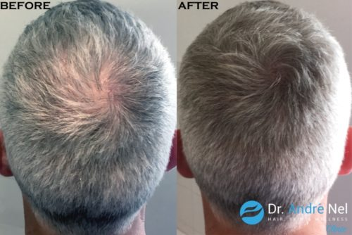 Scalp pigmentation for density after transplant