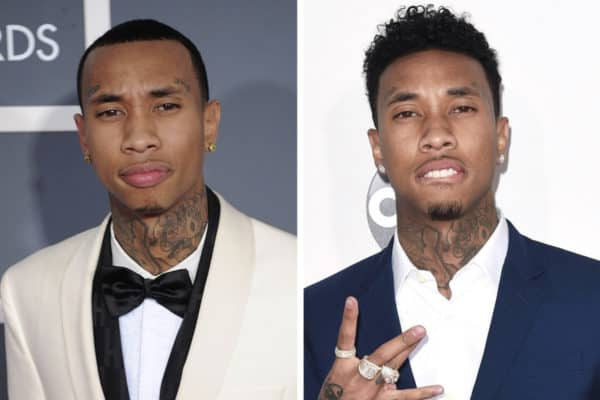 Tyga celebrity hair transplant (before and after).