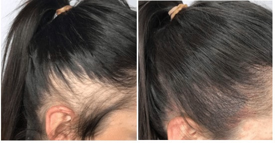 Scalp micropigmentation for women - before and after results.